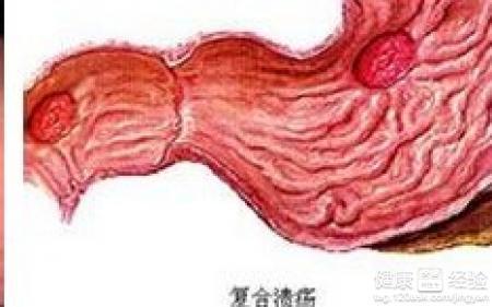 慢性的胃潰瘍要如何治療呢?